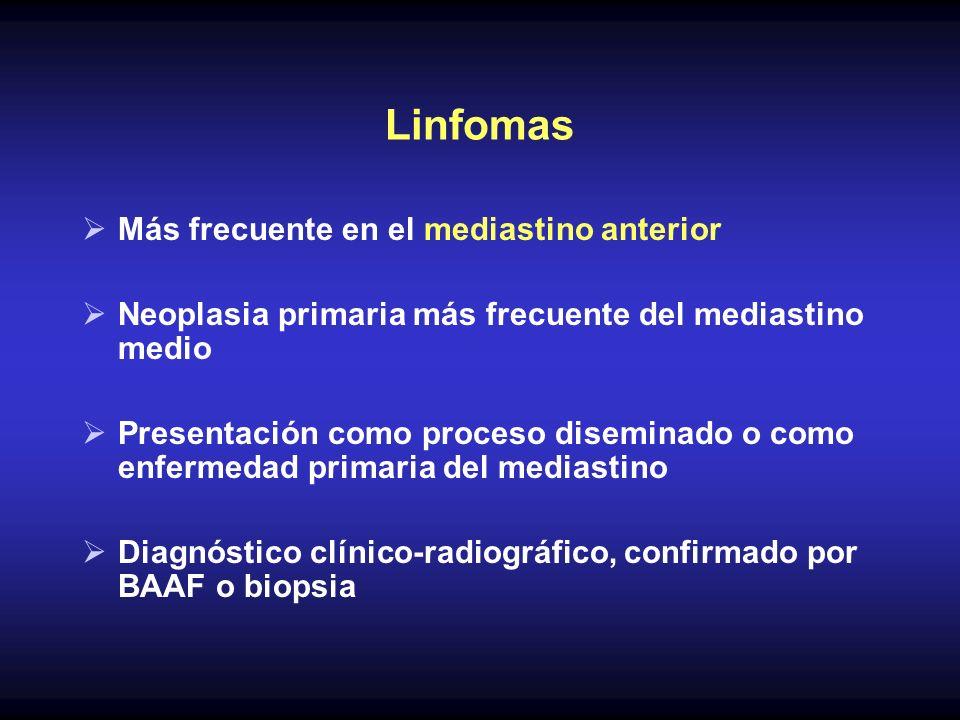 Linfomas Más frecuente en el mediastino anterior