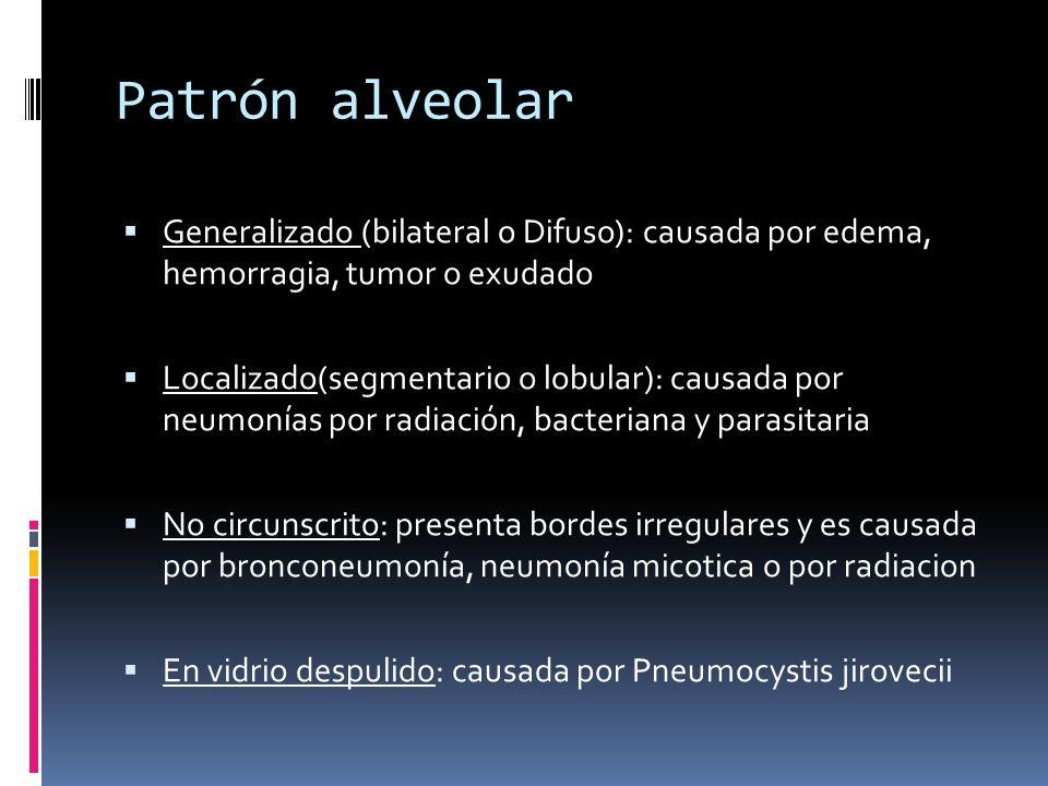 Patrón alveolar Generalizado (bilateral o Difuso): causada por edema, hemorragia, tumor o exudado.