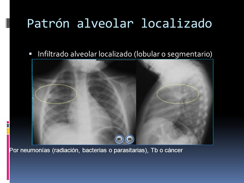 Patrón alveolar localizado