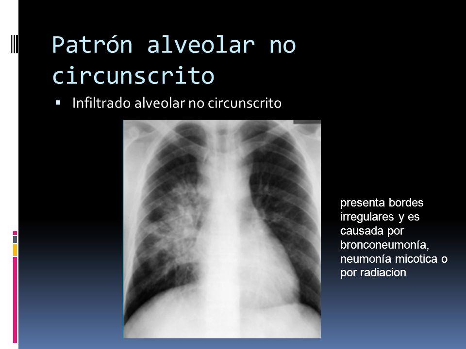 Patrón alveolar no circunscrito