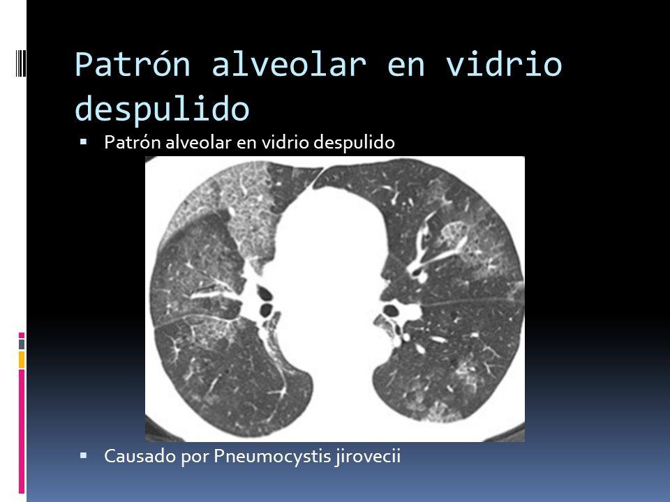 Patrón alveolar en vidrio despulido