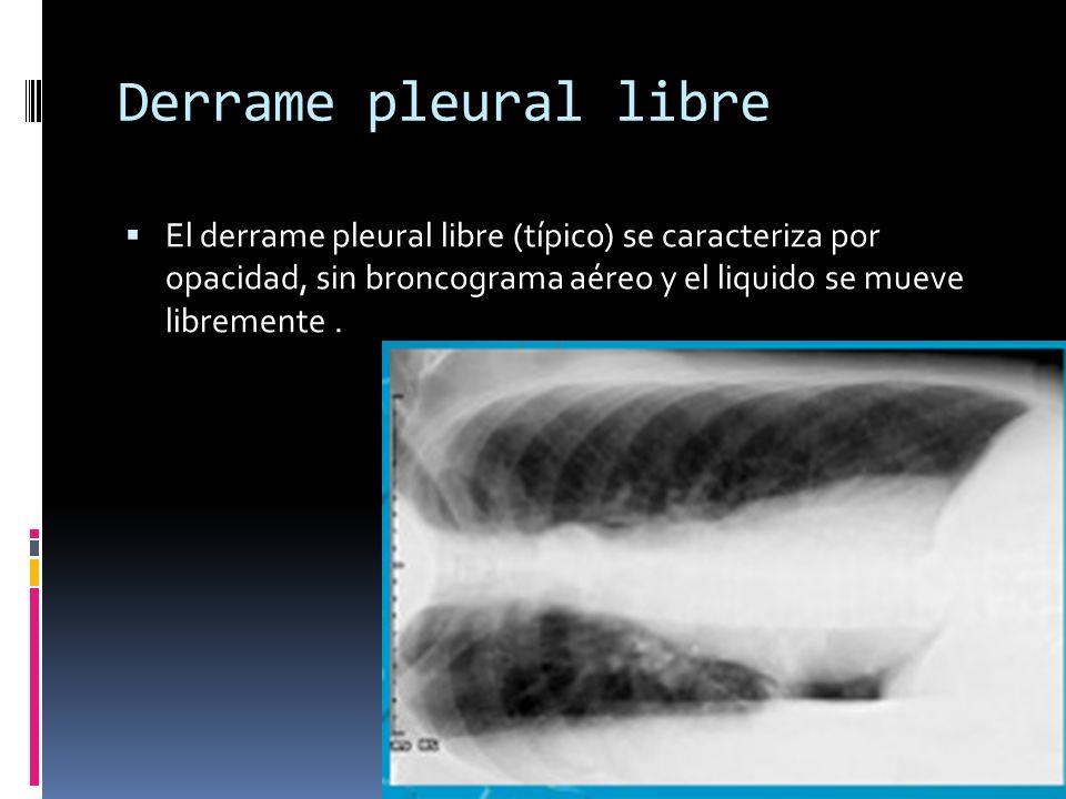 Derrame pleural libre El derrame pleural libre (típico) se caracteriza por opacidad, sin broncograma aéreo y el liquido se mueve libremente .