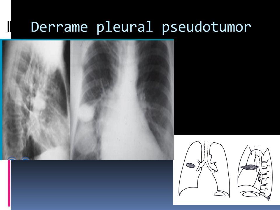 Derrame pleural pseudotumor