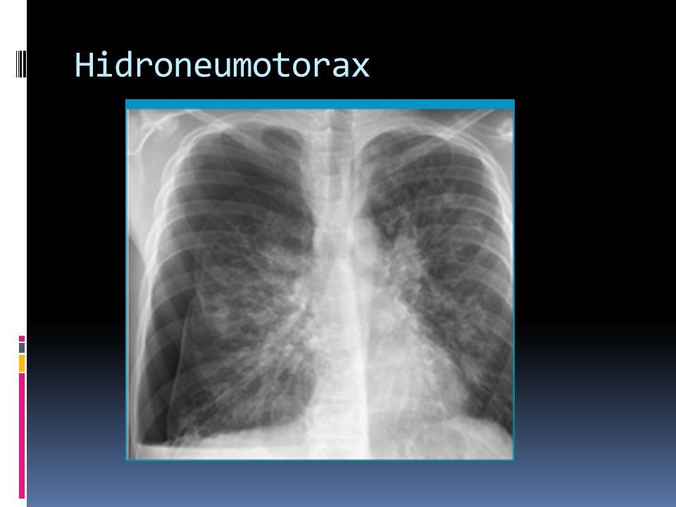 Hidroneumotorax