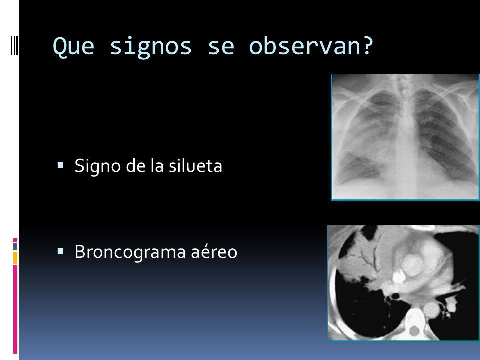 Que signos se observan Signo de la silueta Broncograma aéreo