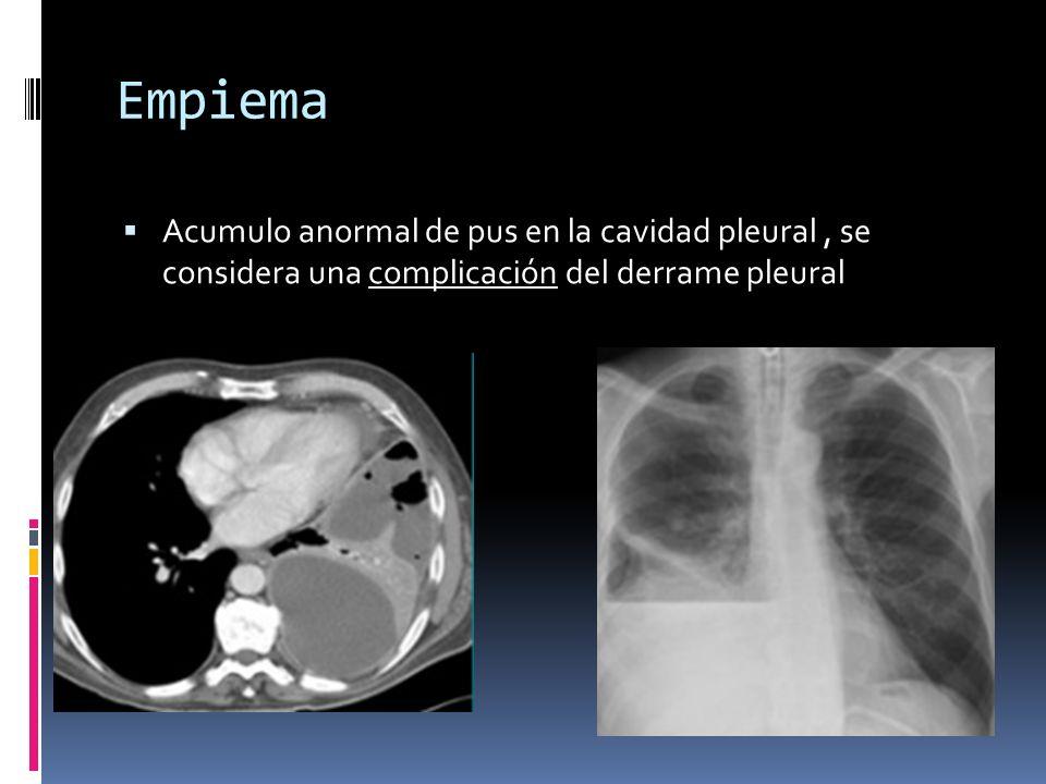 Empiema Acumulo anormal de pus en la cavidad pleural , se considera una complicación del derrame pleural.