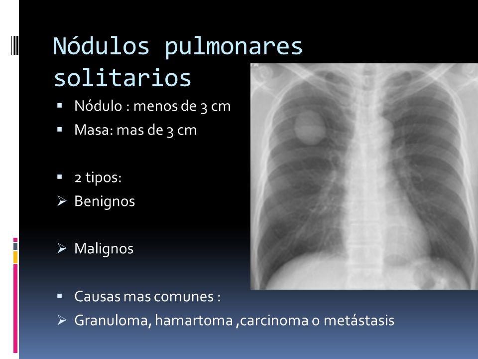 Nódulos pulmonares solitarios