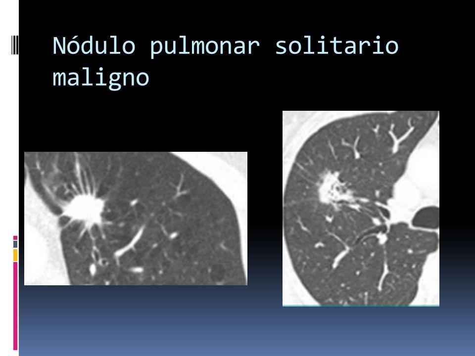 Nódulo pulmonar solitario maligno
