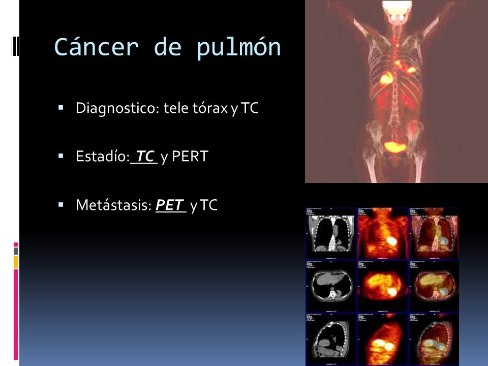Cáncer de pulmón Diagnostico: tele tórax y TC Estadío: TC y PERT