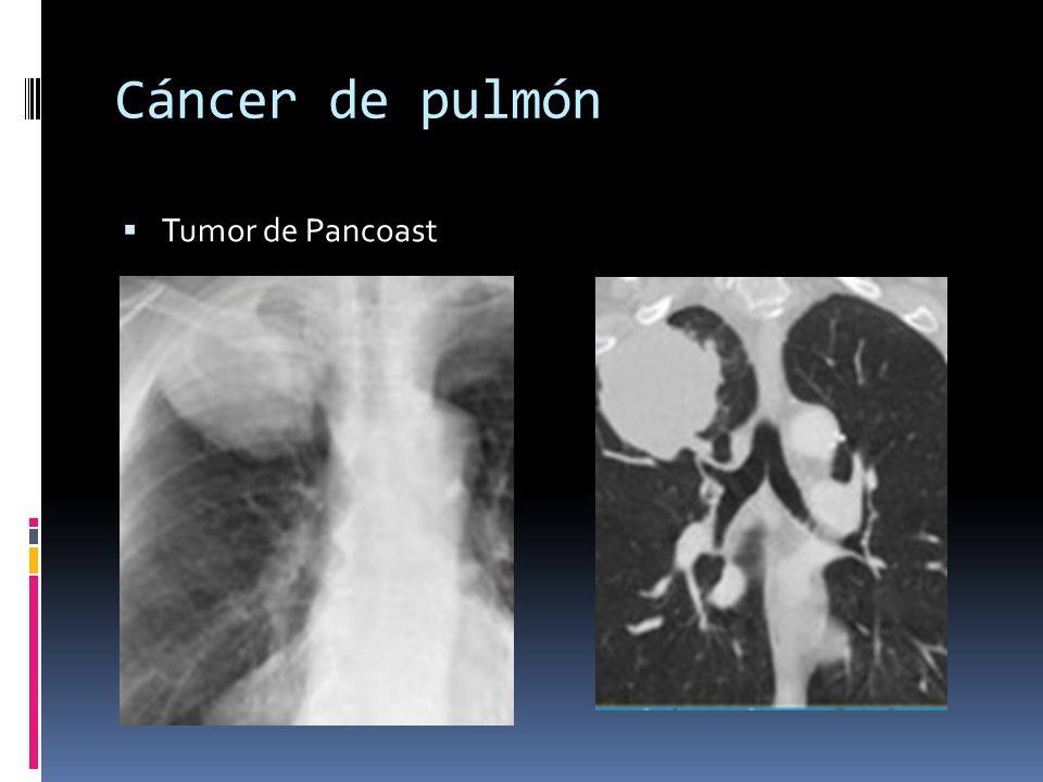 Cáncer de pulmón Tumor de Pancoast