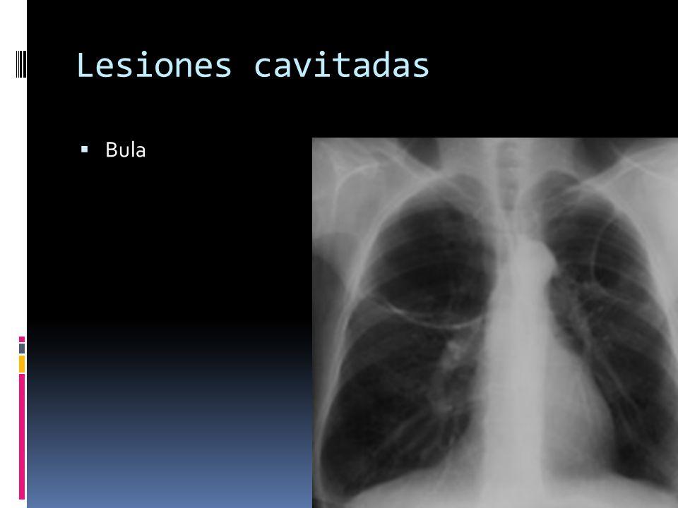 Lesiones cavitadas Bula