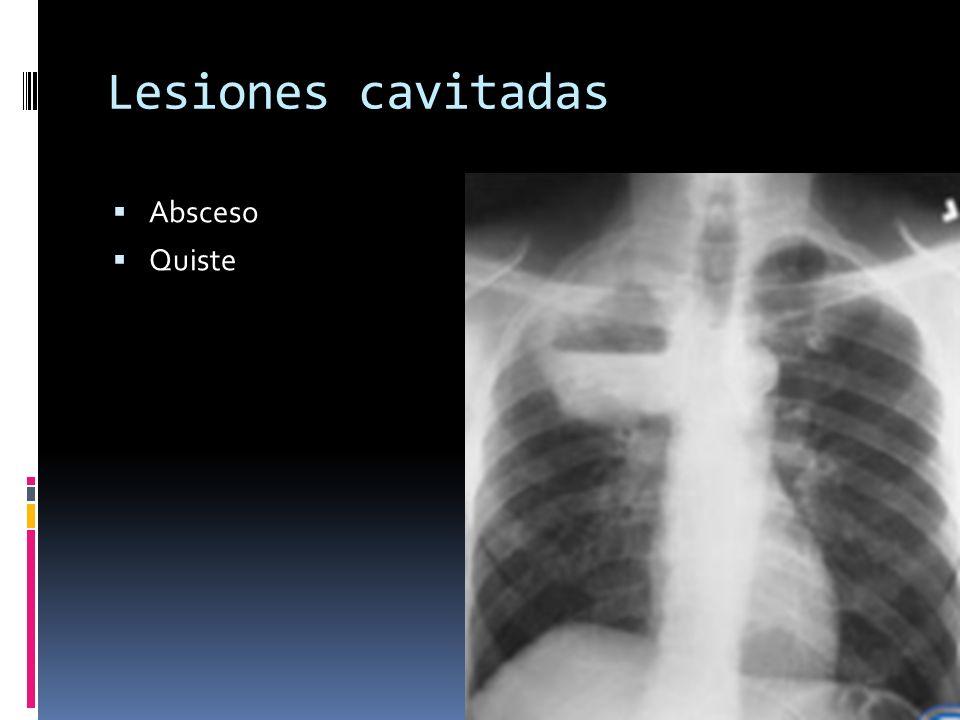 Lesiones cavitadas Absceso Quiste