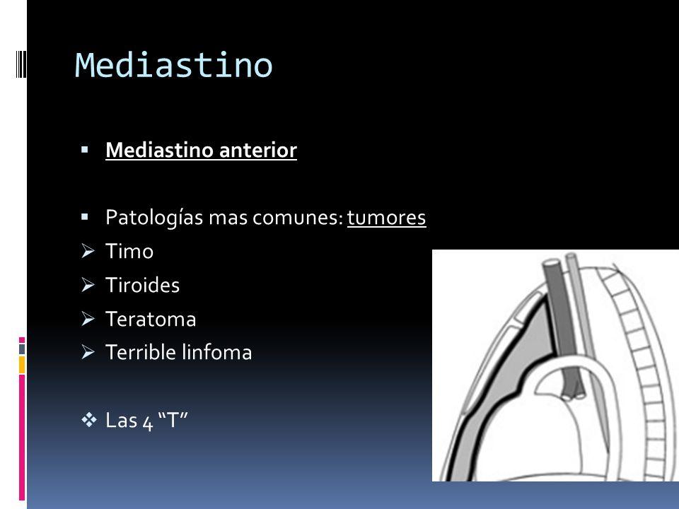 Mediastino Mediastino anterior Patologías mas comunes: tumores Timo