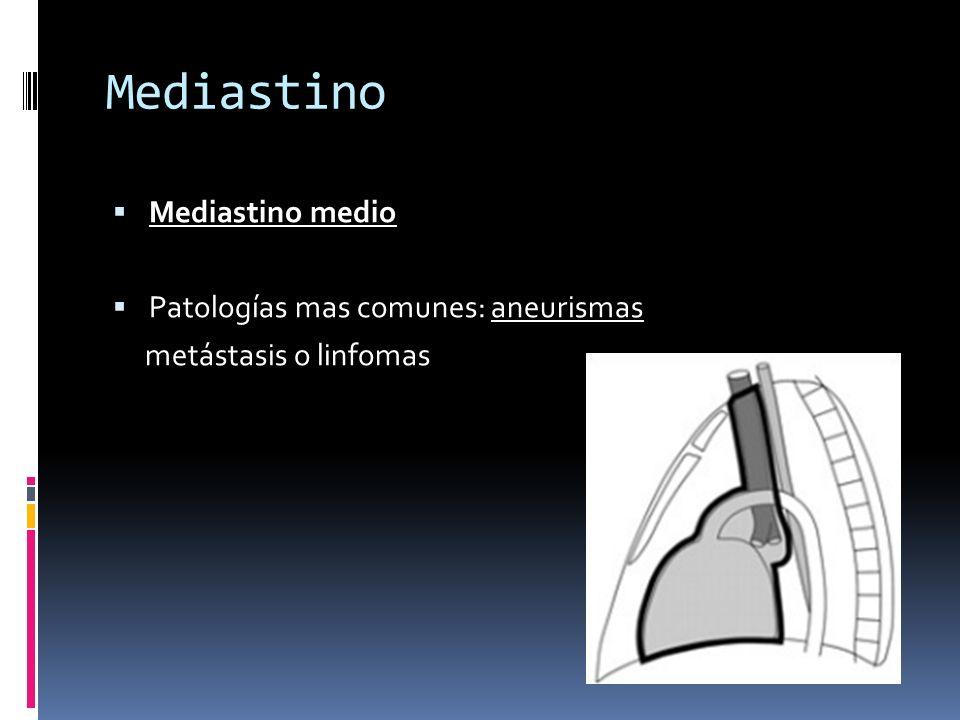 Mediastino Mediastino medio Patologías mas comunes: aneurismas