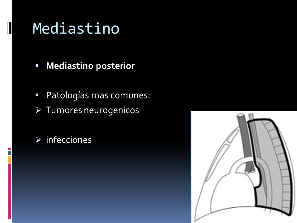 Mediastino Mediastino posterior Patologías mas comunes: