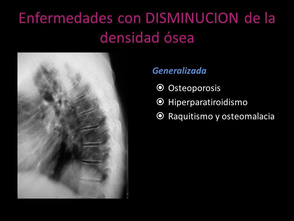 Enfermedades con DISMINUCION de la densidad ósea
