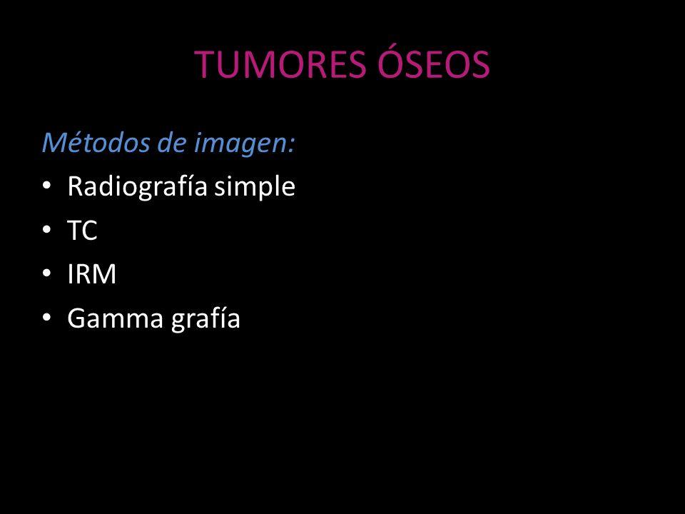 TUMORES ÓSEOS Métodos de imagen: Radiografía simple TC IRM