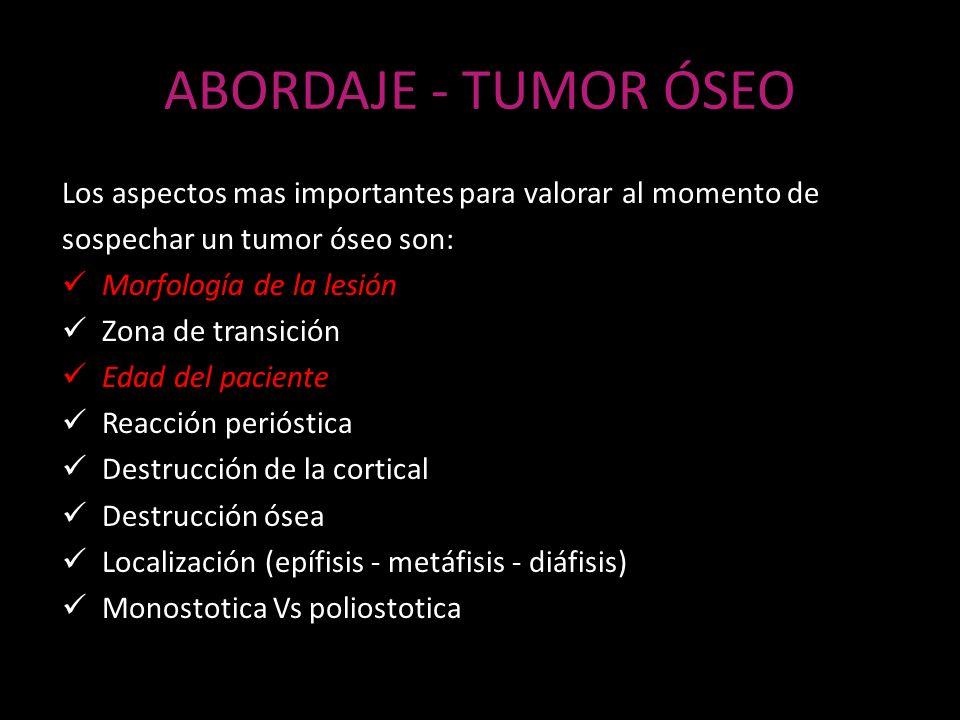 ABORDAJE - TUMOR ÓSEO Los aspectos mas importantes para valorar al momento de. sospechar un tumor óseo son: