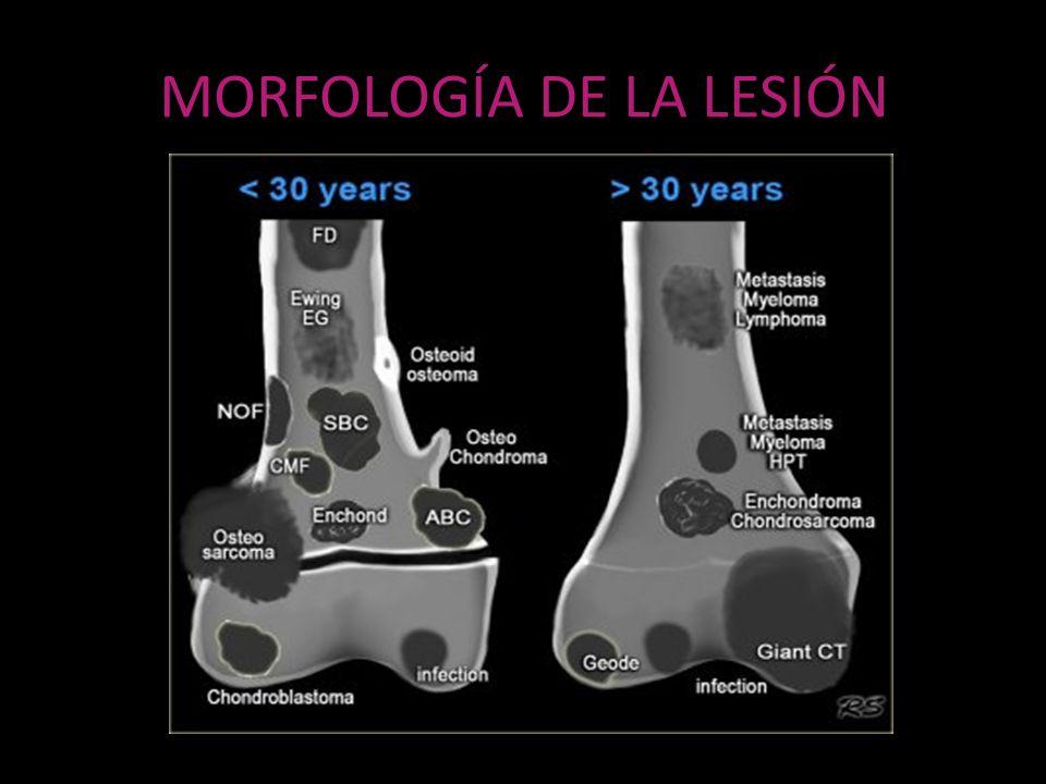 MORFOLOGÍA DE LA LESIÓN