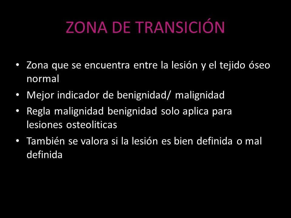 ZONA DE TRANSICIÓNZona que se encuentra entre la lesión y el tejido óseo normal. Mejor indicador de benignidad/ malignidad.
