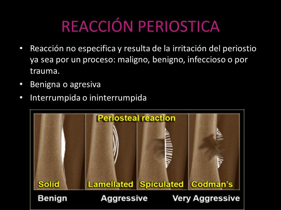 REACCIÓN PERIOSTICA Reacción no especifica y resulta de la irritación del periostio ya sea por un proceso: maligno, benigno, infeccioso o por trauma.