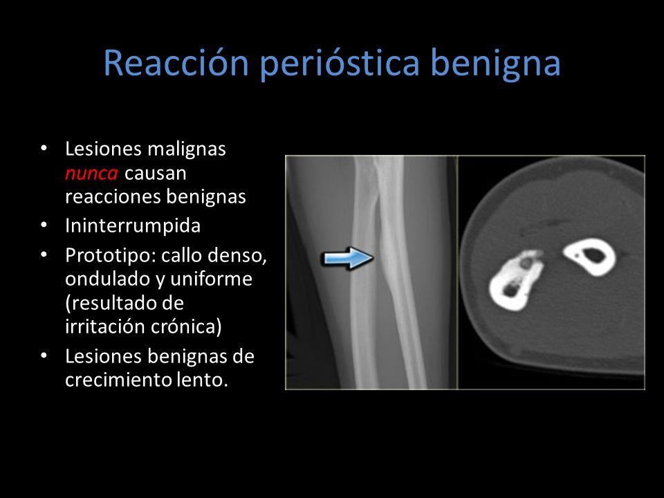 Reacción perióstica benigna