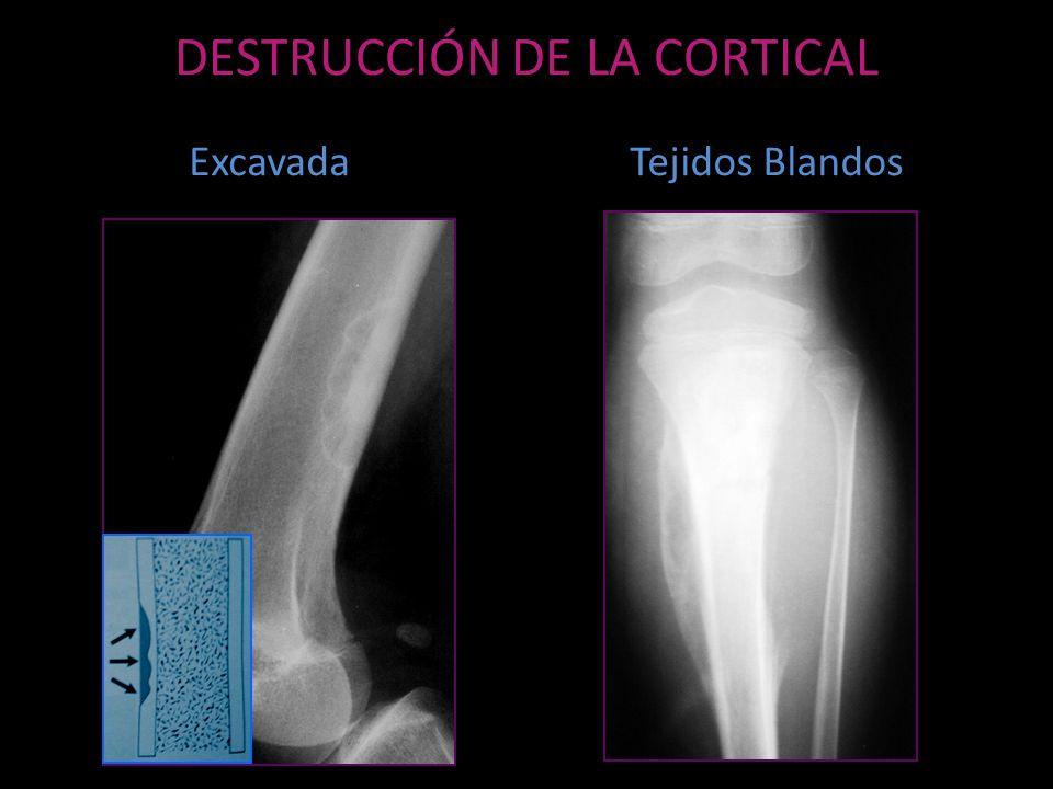 DESTRUCCIÓN DE LA CORTICAL