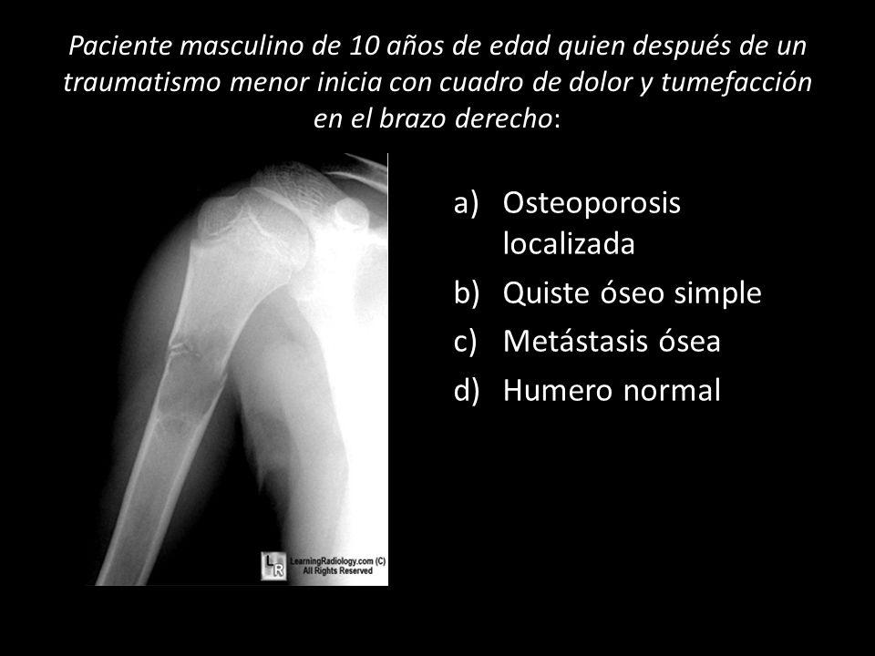 Osteoporosis localizada Quiste óseo simple Metástasis ósea