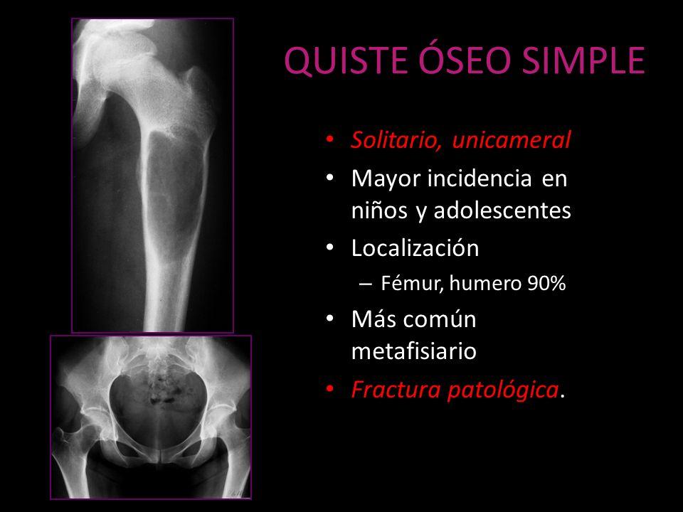 QUISTE ÓSEO SIMPLE Solitario, unicameral