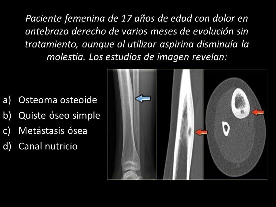 Paciente femenina de 17 años de edad con dolor en antebrazo derecho de varios meses de evolución sin tratamiento, aunque al utilizar aspirina disminuía la molestia. Los estudios de imagen revelan: