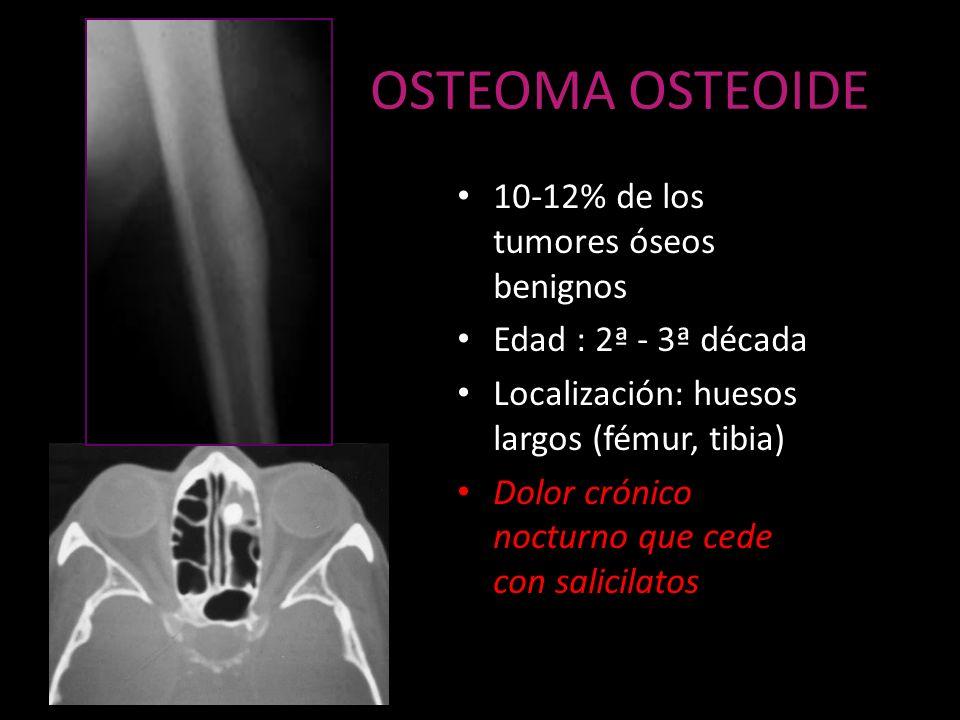 OSTEOMA OSTEOIDE 10-12% de los tumores óseos benignos