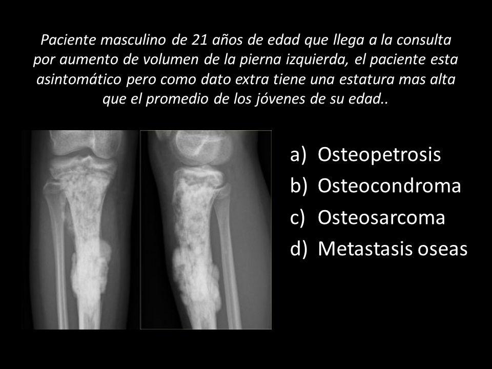 Osteopetrosis Osteocondroma Osteosarcoma Metastasis oseas