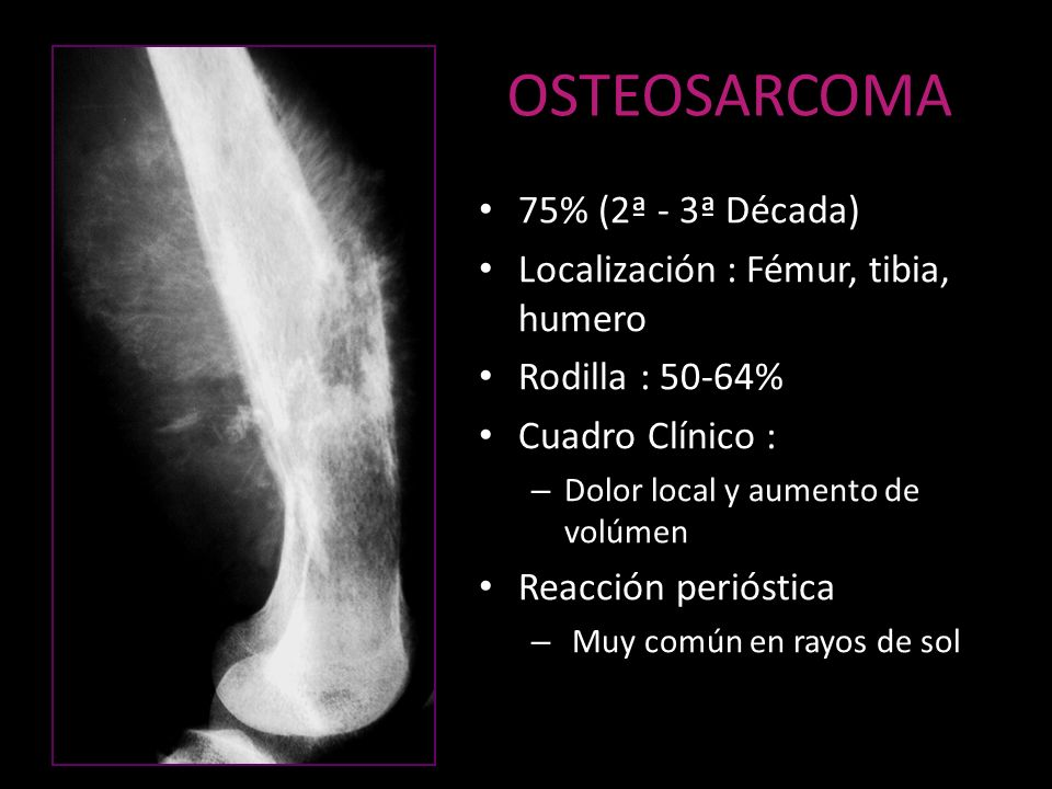 OSTEOSARCOMA 75% (2ª - 3ª Década) Localización : Fémur, tibia, humero