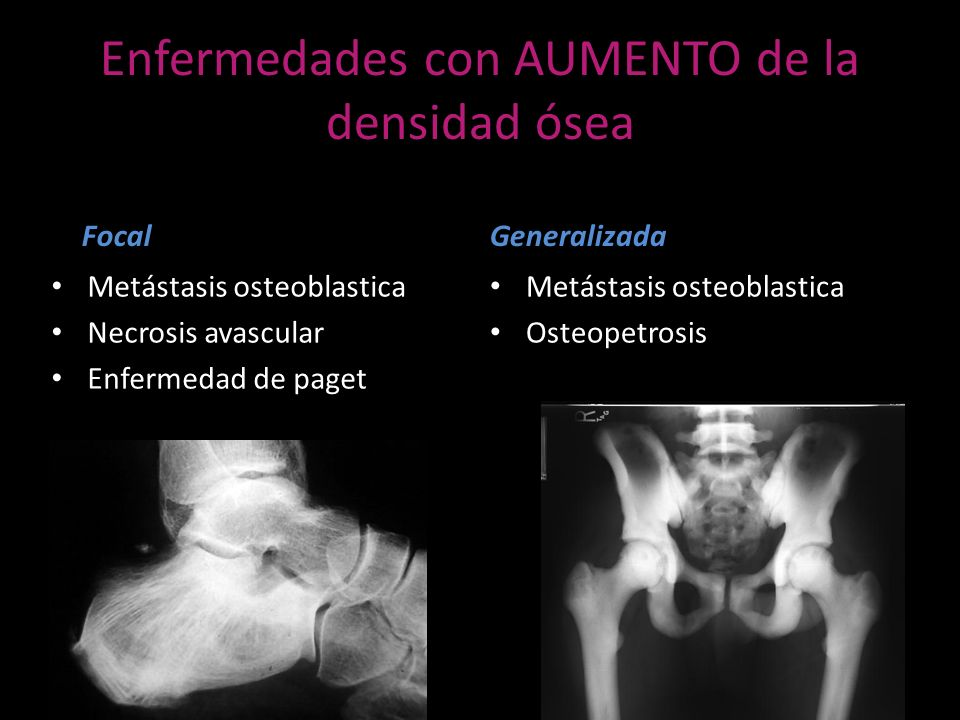 Enfermedades con AUMENTO de la densidad ósea