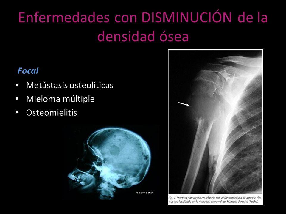 Enfermedades con DISMINUCIÓN de la densidad ósea