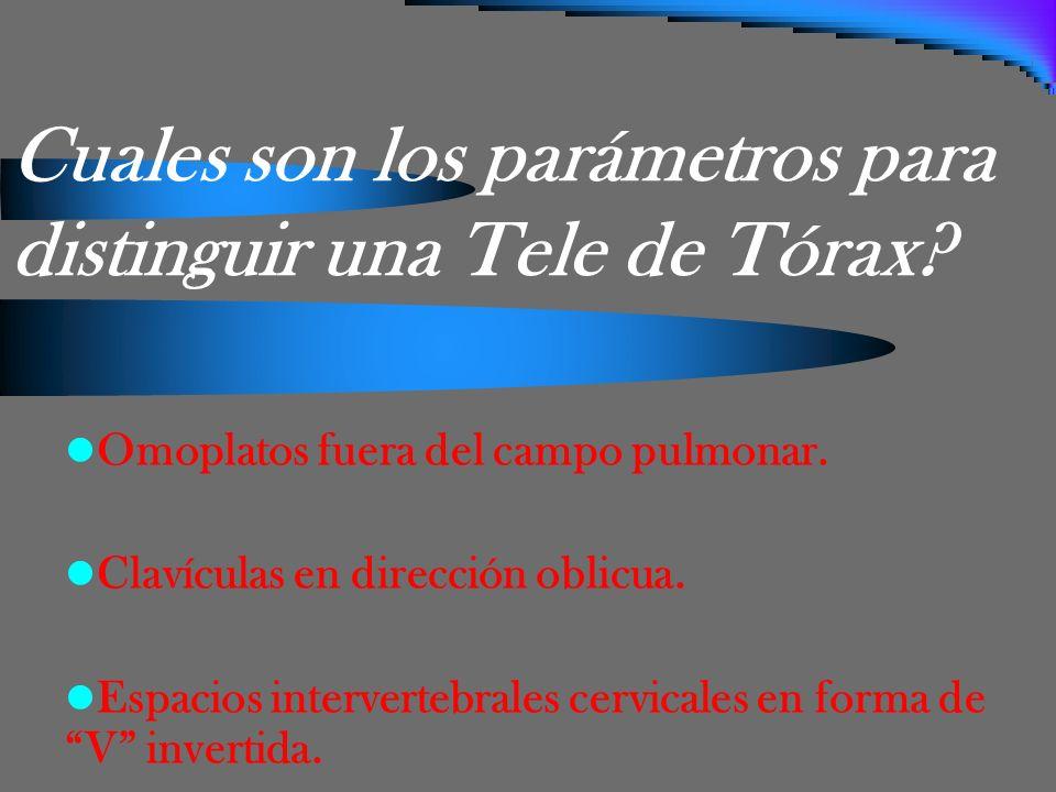 Cuales son los parámetros para distinguir una Tele de Tórax
