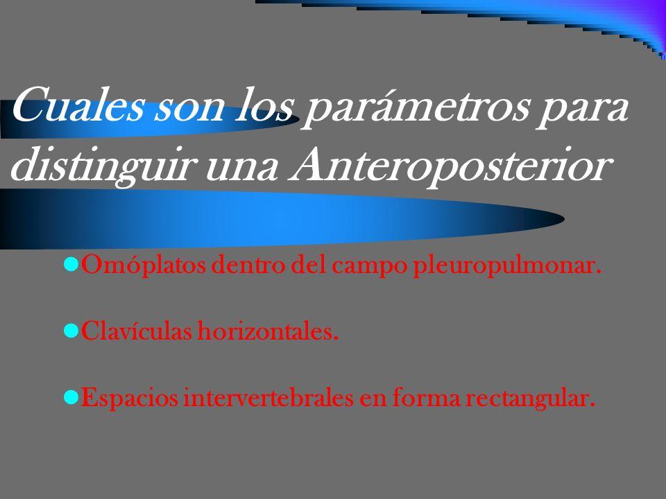 Cuales son los parámetros para distinguir una Anteroposterior