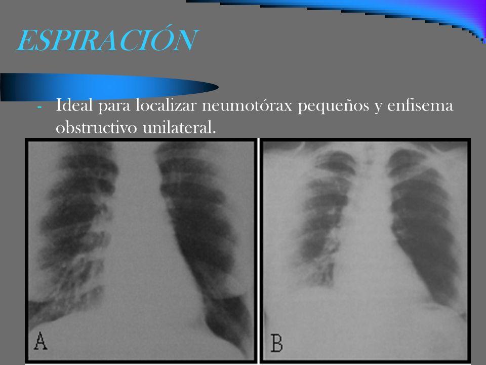 ESPIRACIÓN Ideal para localizar neumotórax pequeños y enfisema obstructivo unilateral.