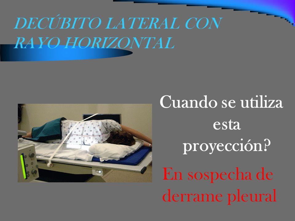 DECÚBITO LATERAL CON RAYO HORIZONTAL