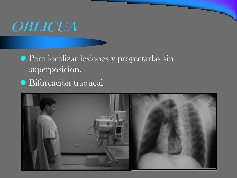 OBLICUA Para localizar lesiones y proyectarlas sin superposición.