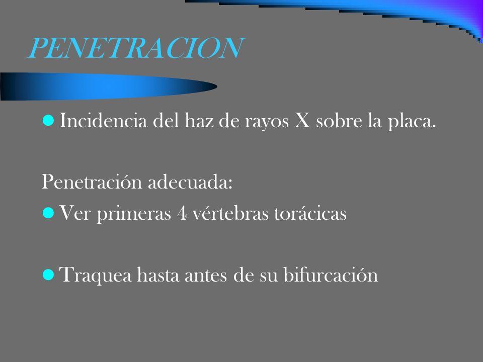 PENETRACION Incidencia del haz de rayos X sobre la placa.
