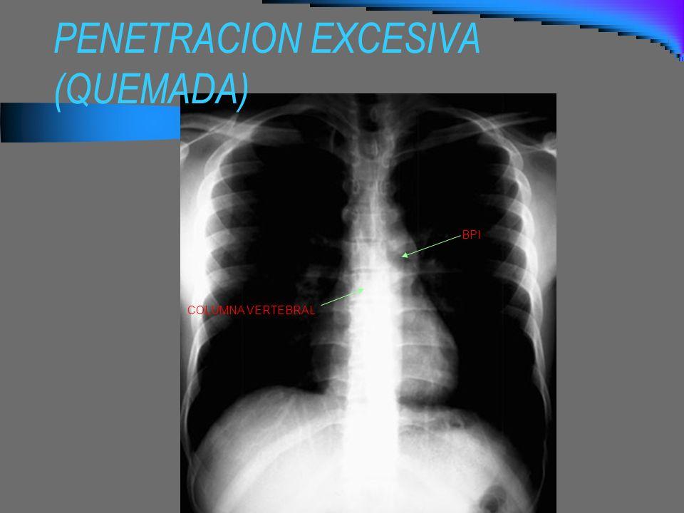 PENETRACION EXCESIVA (QUEMADA)