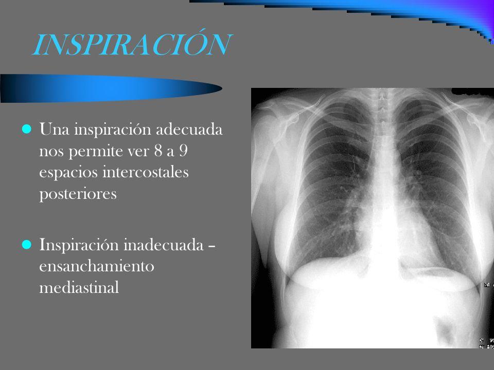 INSPIRACIÓN Una inspiración adecuada nos permite ver 8 a 9 espacios intercostales posteriores.