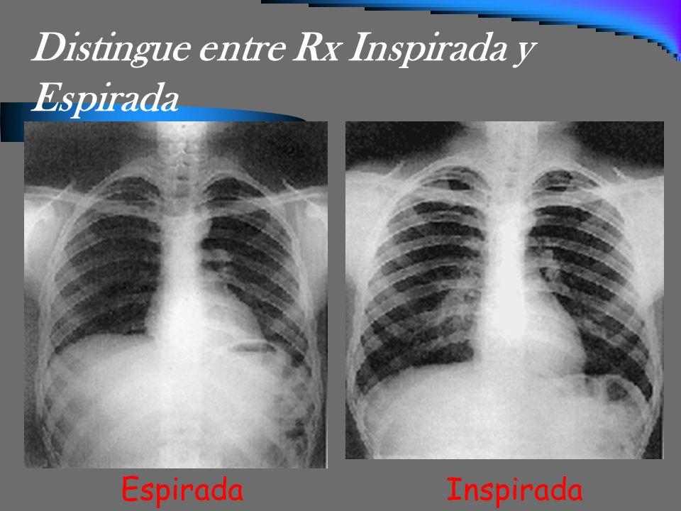 Distingue entre Rx Inspirada y Espirada