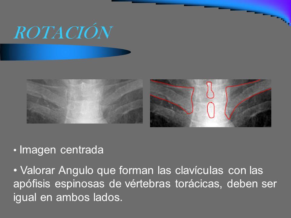 ROTACIÓN Imagen centrada.