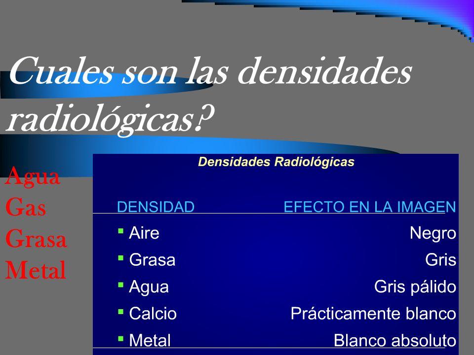 Cuales son las densidades radiológicas