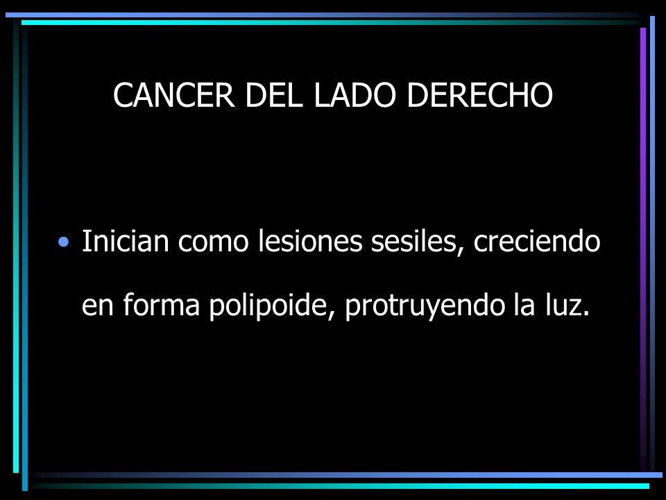 CANCER DEL LADO DERECHO