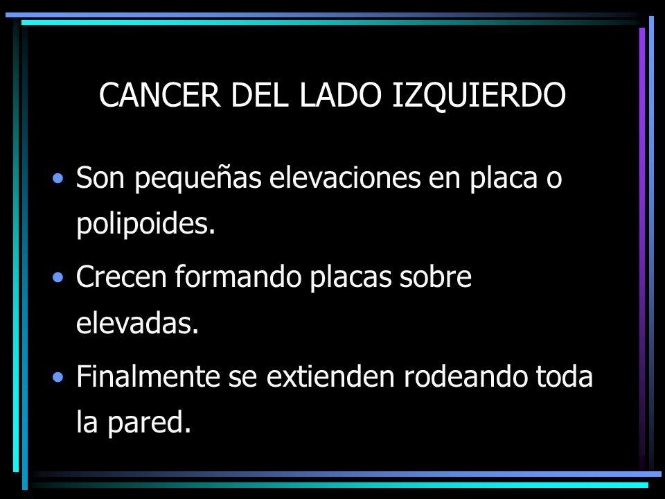 CANCER DEL LADO IZQUIERDO