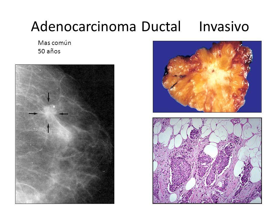 Adenocarcinoma Ductal Invasivo