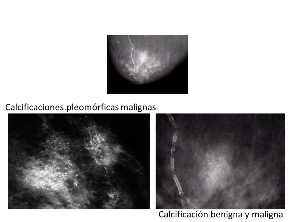 Calcificaciones.pleomórficas malignas